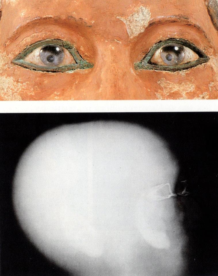 Radiografia della testa dello Scriba